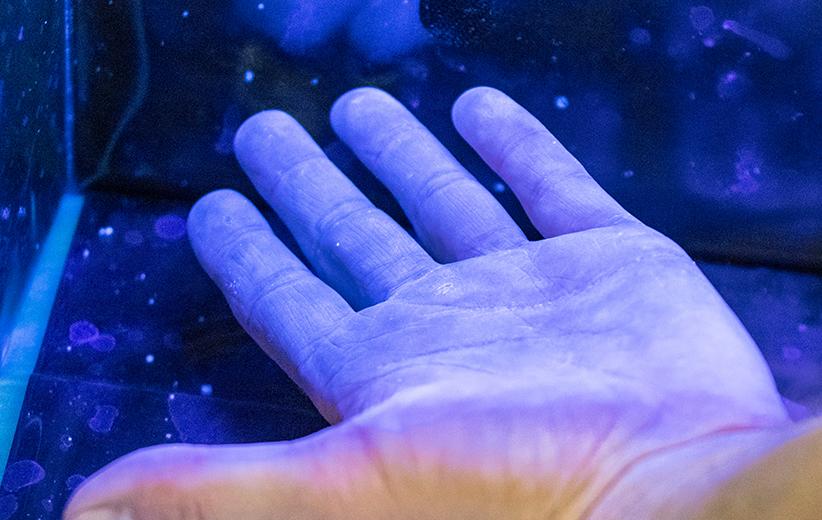 nachweis-bakteriell-besiedelte-hand-wundkongress-badstaffelstein